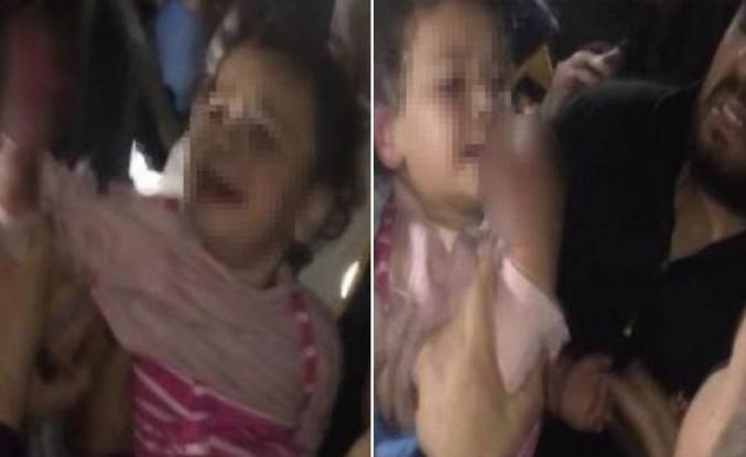 Elini asansöre kaptıran çocuğun parmakları koptu