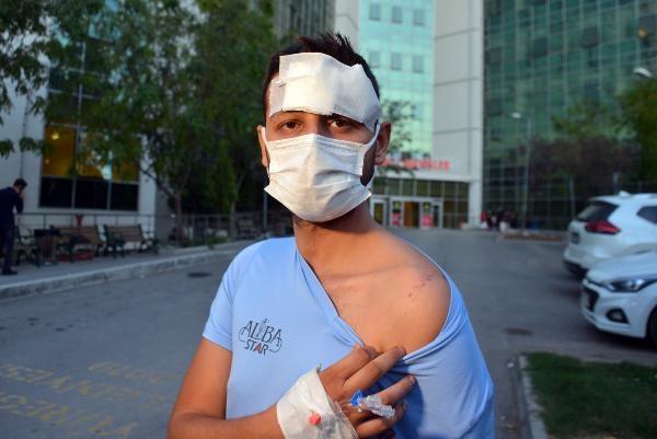 Demir çubuklarla dövülen emlakçı, ağır yaralandı