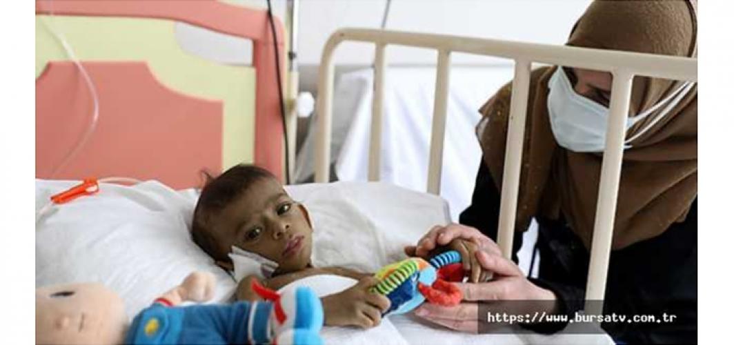 Bursa'da Tamer bebek için sınır ötesi karaciğer operasyonu!