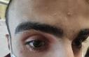 Gözünde unutulan cam kırığı ile bir ay yaşadı