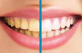 Dişlerdeki sararmalar gülümsemeyi engelliyor