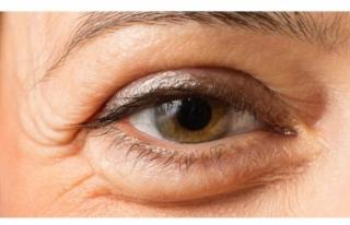 Göz seğirmesinin nedenleri nelerdir?