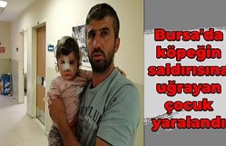 Bursa'da köpeğin saldırısına uğrayan çocuk...
