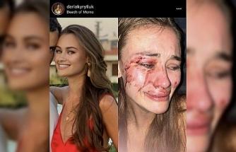 Ukraynalı modelin 'darp' iddiasıyla ilgili görgü tanığı ifadesi ortaya çıktı