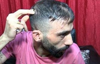 Bahçelievler'de 4 kişi tarafından darp edilip dere yatağına atılan Suriyeli konuştu