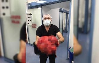Karın şişliğiyle gittiği hastanede karnından 14 kilogram kitle çıktı