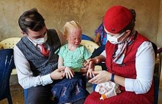 THY, güneşten saklanan albino hastası çocukların yaralarına merhem oldu