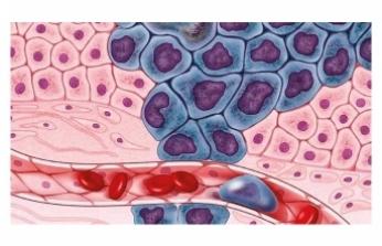 20 kanser türü kan testiyle teşhis edilebilecek!