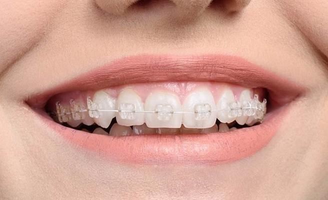 Diş teli olanlarda ağız bakımına dikkat