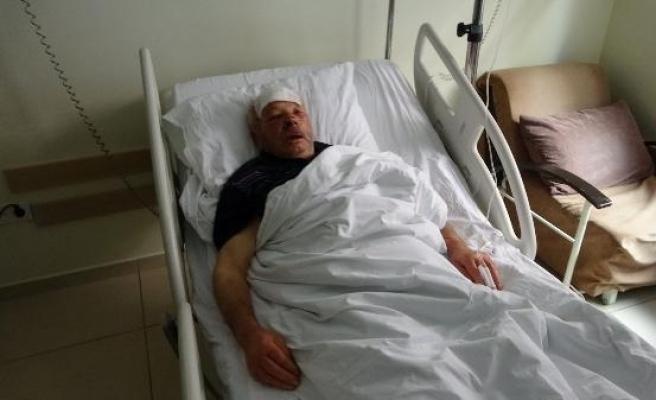 Kamyonet kapağının çarpmasıyla yaralandı, en çok dişlerinin kırılmasına üzüldü
