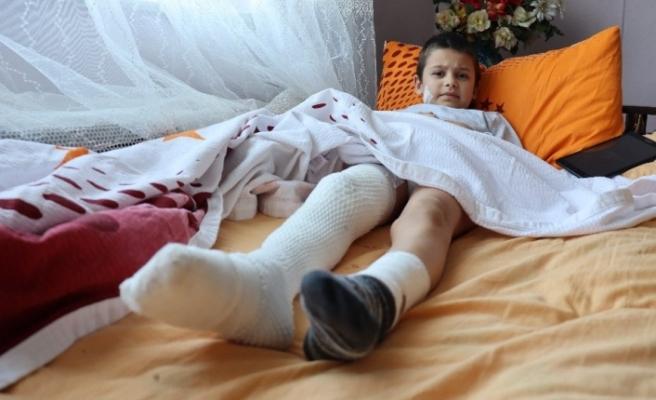 Küçük çocuk 15 dikişle kurtulduğu pitbull dehşetini böyle anlattı: