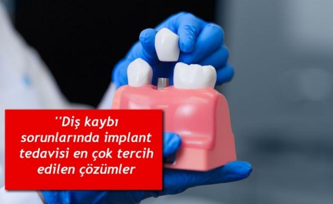 """''Diş kaybı sorunlarında implant tedavisi en çok tercih edilen çözümler arasında"""""""