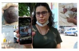 Doğum sırasında düşürüldüğü iddia edilen Azra bebek, ölüm kalım savaşı veriyor