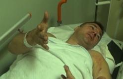 Bursa'da 34 aracın karıştığı zincirleme kazada yaralanan adam o anları anlattı